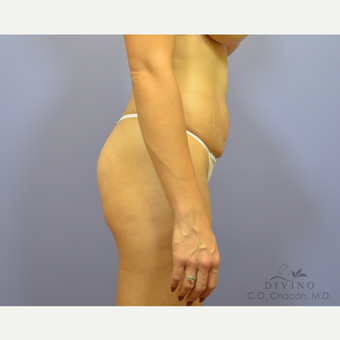 25-34 year old woman treated with Liposuction before 3391601