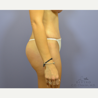 25-34 year old woman treated with Liposuction after 3391601
