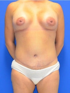 35-44 year old woman treated with Mommy Makeover after 3003918