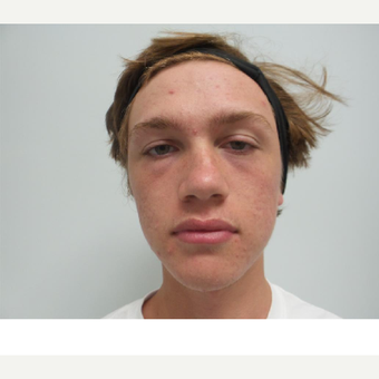 17 or under year old man treated with Acne Treatment