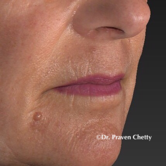 55-64 year old woman treated with Mole Removal before 3403371
