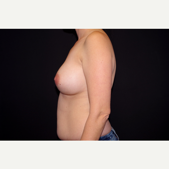 35-44 year old woman treated with Breast Implant Revision before 2998885