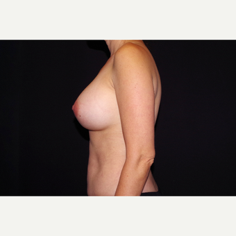 35-44 year old woman treated with Breast Implant Revision after 2998885