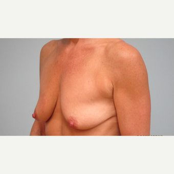 35-44 year old woman treated with Breast Lift with Implants before 3306022