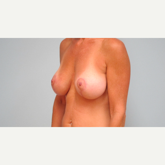 35-44 year old woman treated with Breast Lift with Implants after 3306022