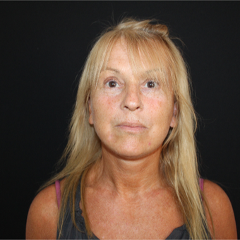 55-64 year old woman treated with SMAS Facelift after 3493533