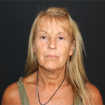 55-64 year old woman treated with SMAS Facelift before 3493533