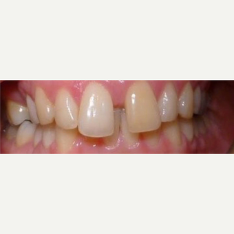 Gaps in teeth  before 3127257