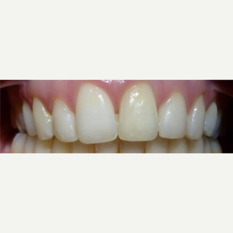 Gaps in teeth  after 3127257
