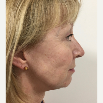 Open Rhinoplasty after 3112464