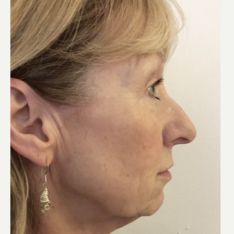Open Rhinoplasty before 3112464