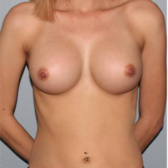 18-24 year old woman treated with Breast Augmentation after 3332614