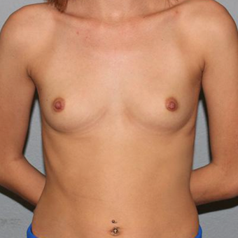 18-24 year old woman treated with Breast Augmentation before 3332614