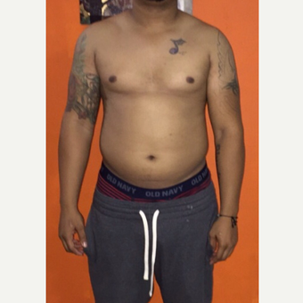 34 year old man treated with Male Liposuction and  Male Breasts Reduction 01M PO before 3838351