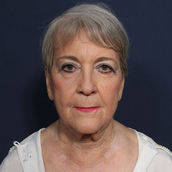 75 and up year old woman treated with Facelift before 3128993
