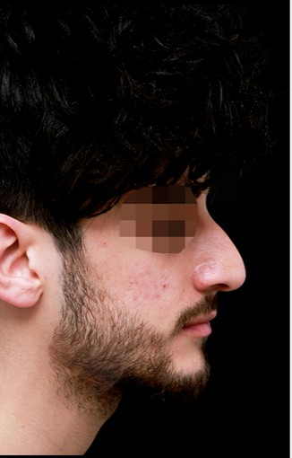 25-34 year old man treated with Rhinoplasty before 3204725