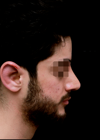 25-34 year old man treated with Rhinoplasty after 3204725