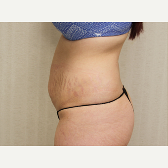 18-24 year old woman treated with Tummy Tuck before 3684715