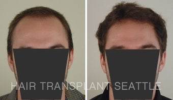 25-34 year old man treated with Hair Transplant before 1578502