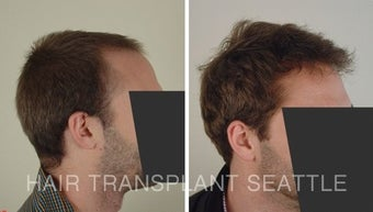 25-34 year old man treated with Hair Transplant 1578502
