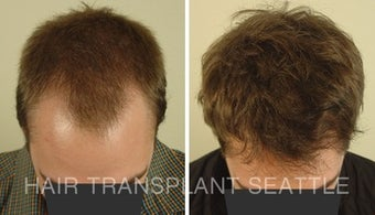 25-34 year old man treated with Hair Transplant after 1578502