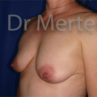 35-44 year old woman treated with Breast Augmentation before 3555472