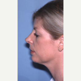 25-34 year old woman treated with Chin Implant after 2993845