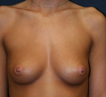 Breast Augmentation - Gel Implants before 510475