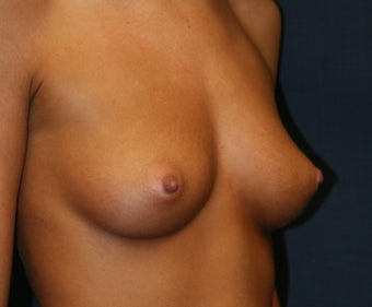 Breast Augmentation - Gel Implants 510475