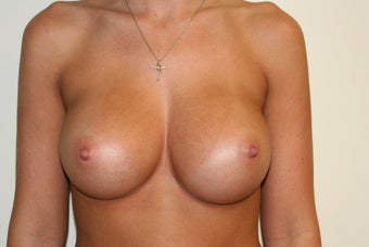 Breast Augmentation - Gel Implants after 510475