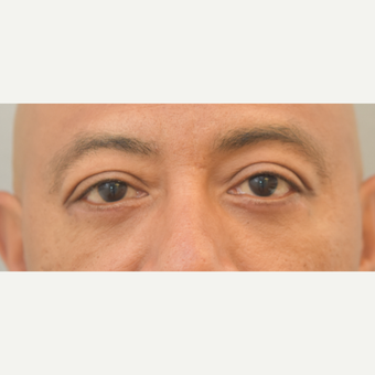 48 year old man treated with Eyelid Surgery