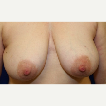 52 year old woman treated with left breast reconstruction and right breast reduction for symmetry before 3041965