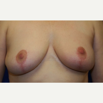 52 year old woman treated with left breast reconstruction and right breast reduction for symmetry after 3041965