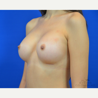 18-24 year old woman treated with Breast Augmentation after 3419101