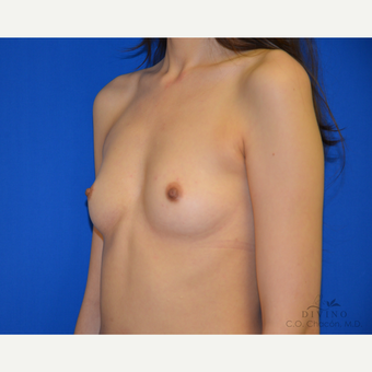 18-24 year old woman treated with Breast Augmentation before 3419101