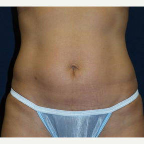 45-54 year old woman treated with Tummy Tuck after 3453682
