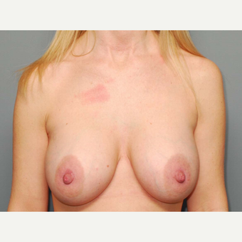 36 y/o Dual Plane Breast Augmentation after 3065894