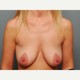 36 y/o Dual Plane Breast Augmentation before 3065894