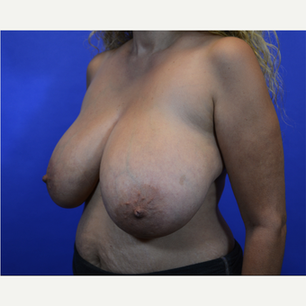 35-44 year old woman treated with Breast Reduction before 3579988
