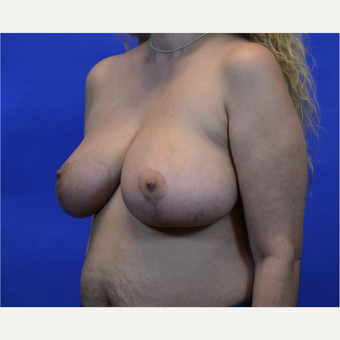 35-44 year old woman treated with Breast Reduction after 3579988