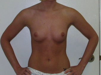Breast Augmentation before 228437