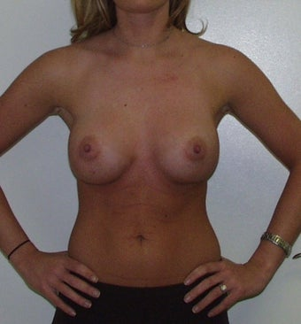 Breast Augmentation after 228437