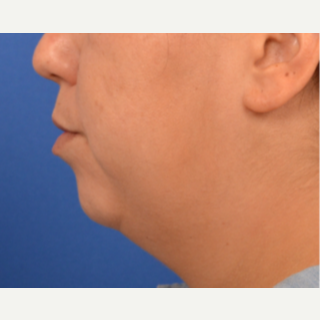 Chin Implant, submental liposuction and buccal fat removal before 3220645