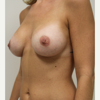 25-34 year old woman treated with Breast Augmentation after 3141780