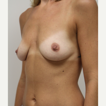 25-34 year old woman treated with Breast Augmentation before 3141780