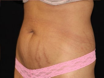 25-34 year old woman treated with SculpSure 3501971