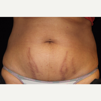 25-34 year old woman treated with SculpSure before 3501971