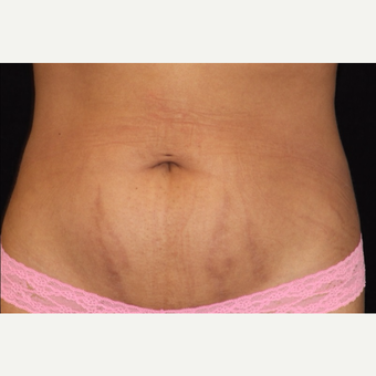 25-34 year old woman treated with SculpSure after 3501971