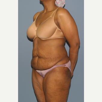 45-54 year old woman treated with Tummy Tuck before 3559088