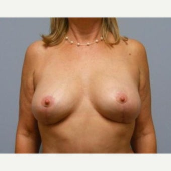 Breast Lift after 1596179